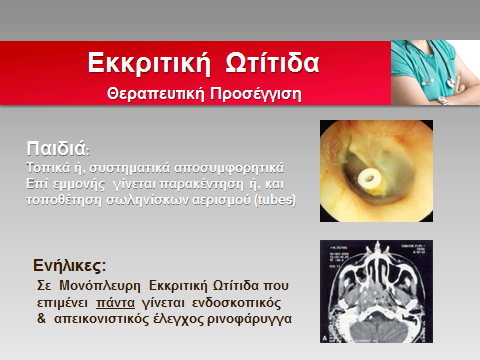 ekr-otitida3